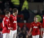 Manchester United lose