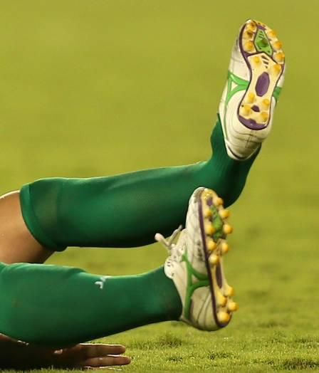 Zandi Broken Leg