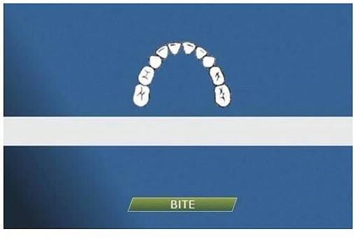 Bite-Line Technology