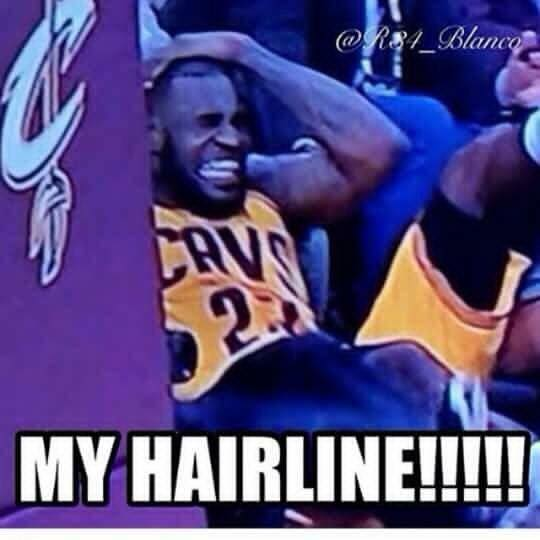 My Hairline