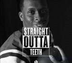 Straight outta teeth
