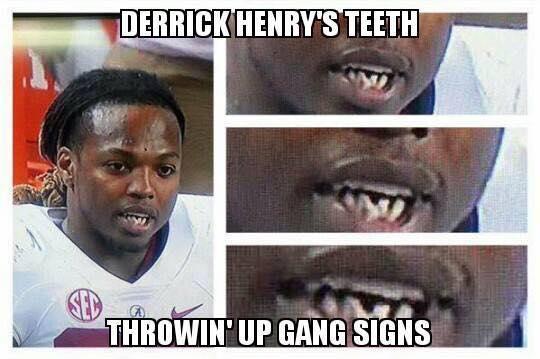 Derrick Henry Teeth