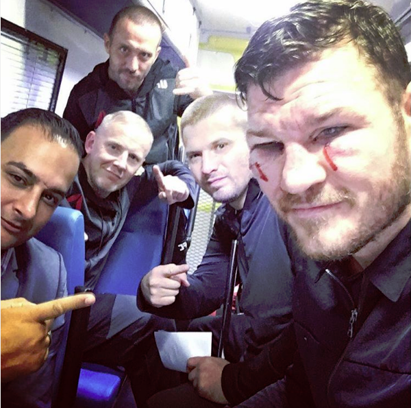 Best Memes Of Michael Bisping Looking Banged Up After Beating Dan