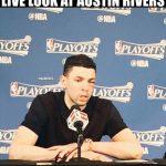 Austin Rivers Black Eye