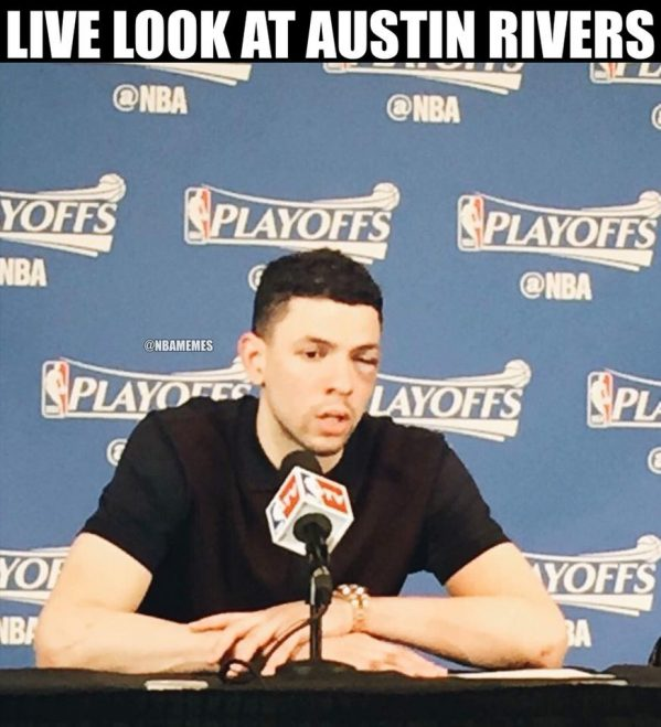 Austin Rivers Black Eye